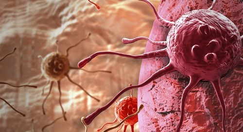 Researchers examine CR rates in advanced cancer patients who receive cancer treatment