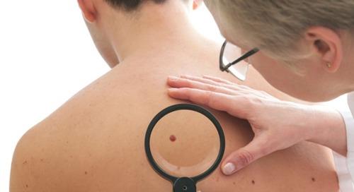 New drug may show promise against resistant melanomas