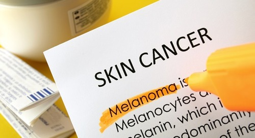 Compared to monotherapy combination of pills for advanced skin cancer extends survival