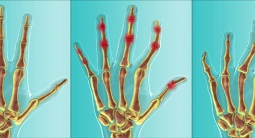 Novartis announces EC approval of Cosentyx for treatment of ankylosing spondylitis, psoriatic arthritis
