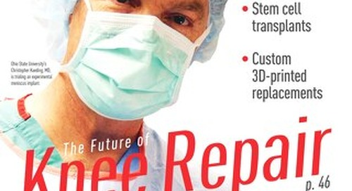 The Future of Knee Repair - February 2016 - Subscribe to Outpatient Surgery Magazine