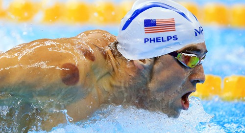 Bekam yang Jadi Idola Para Atlet Olimpiade