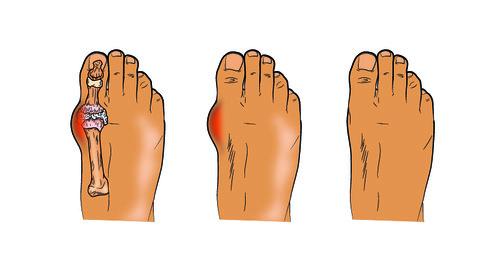 Gout Alert