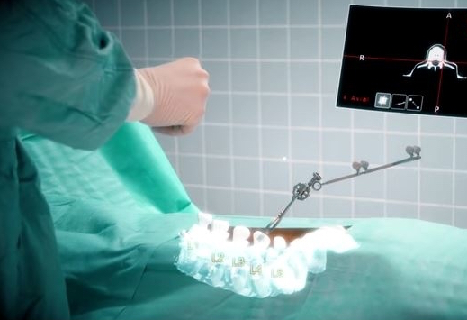 Spinal surgery using augmented reality