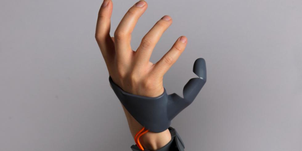 Prosthetic third thumb